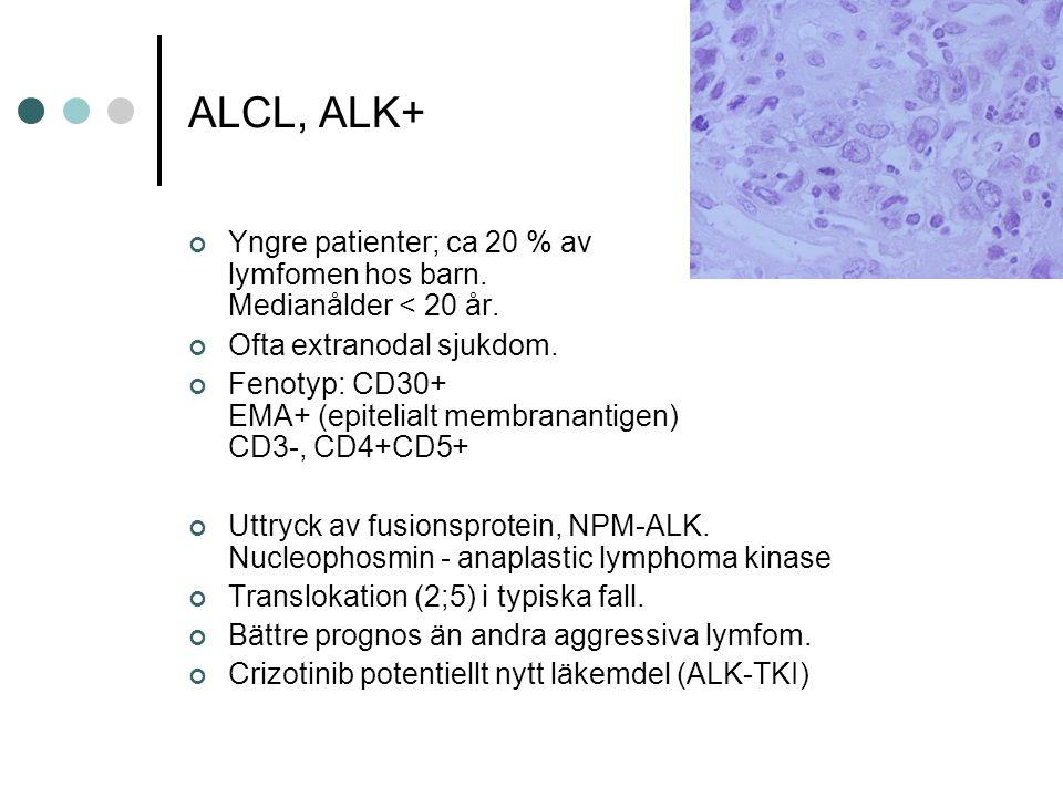 ALCL, ALK+ Yngre patienter; ca 20 % av lymfomen hos barn. Medianålder < 20 år. Ofta extranodal sjukdom.