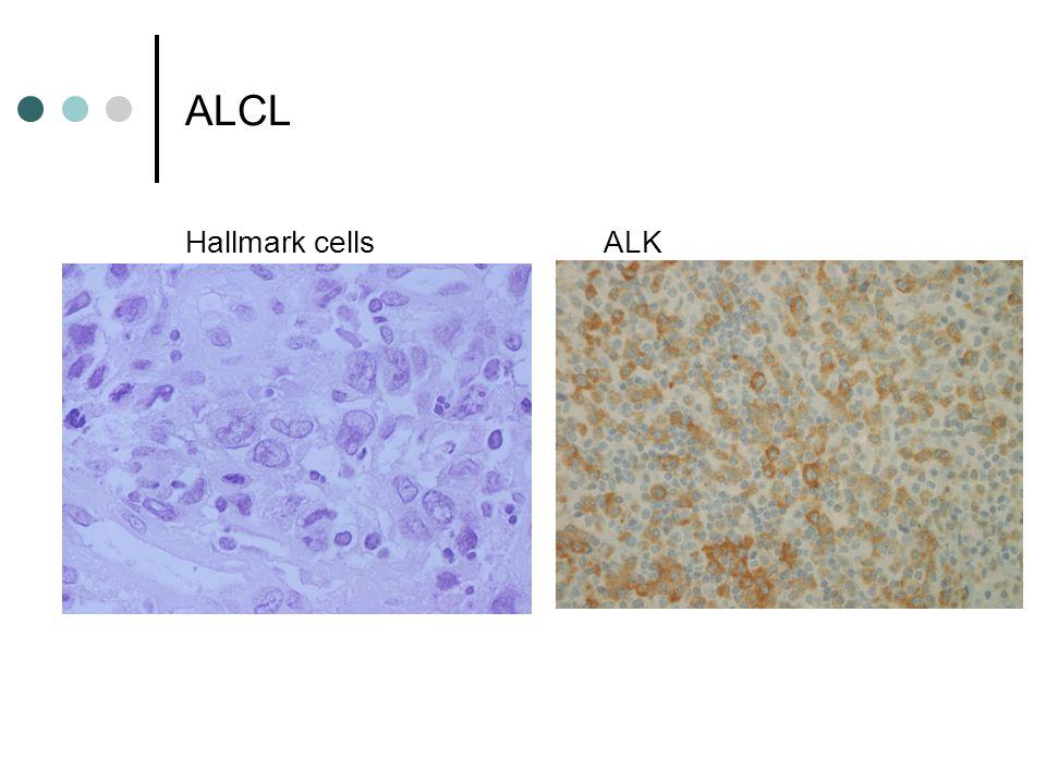 ALCL Hallmark cells ALK
