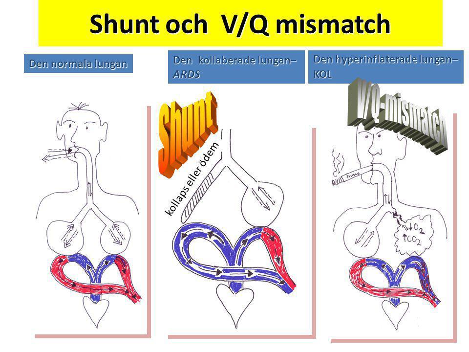 Shunt och V/Q mismatch Shunt V/Q-mismatch Den kollaberade lungan– ARDS