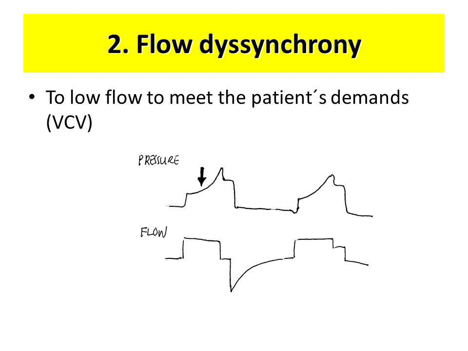 2. Flow dyssynchrony To low flow to meet the patient´s demands (VCV)