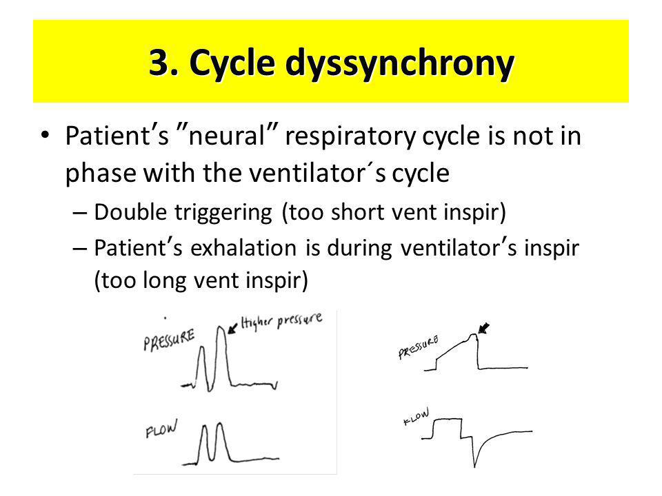 3. Cycle dyssynchrony Patient's neural respiratory cycle is not in phase with the ventilator´s cycle.