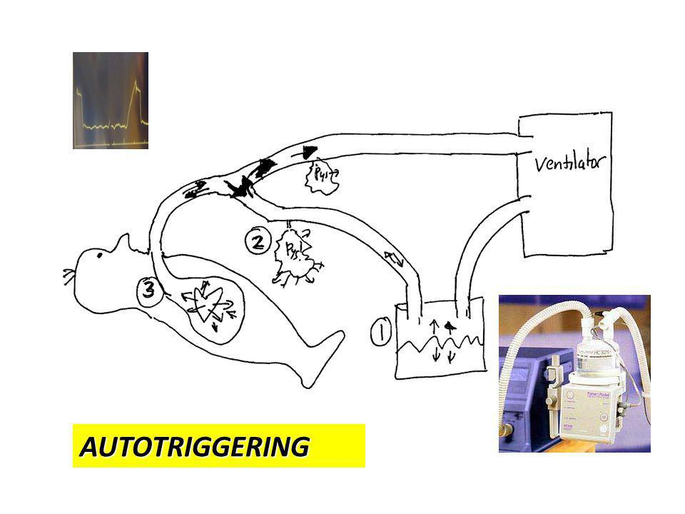 AUTOTRIGGERING