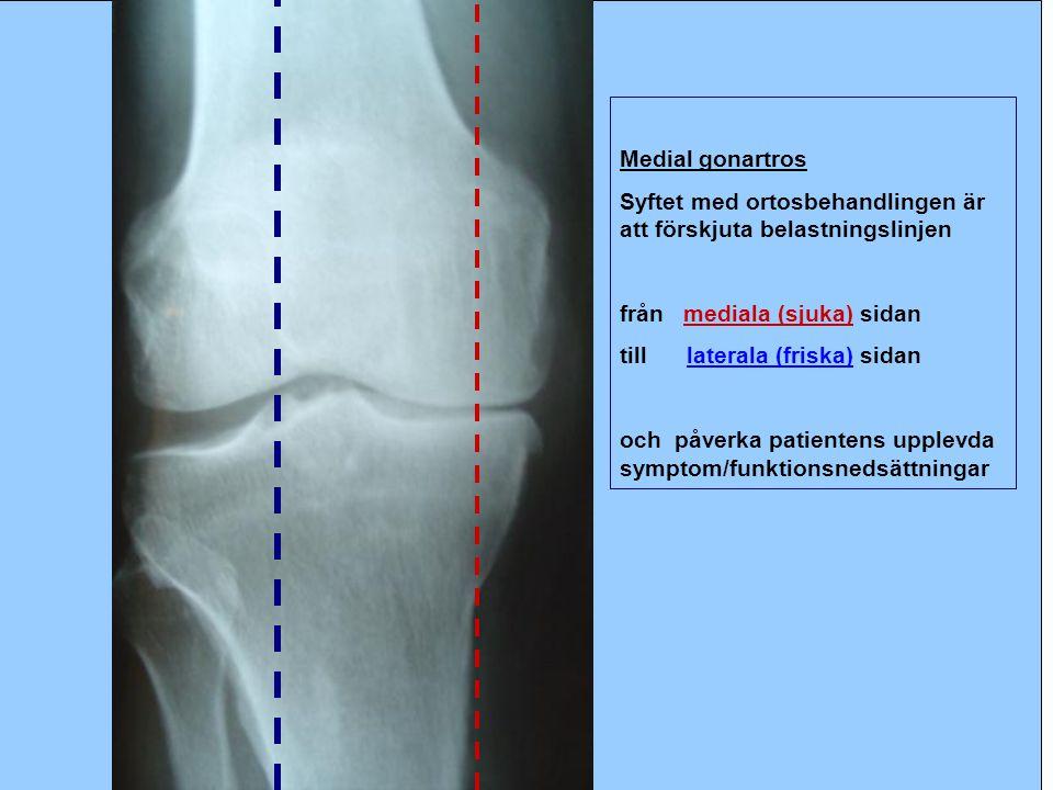 Medial gonartros Syftet med ortosbehandlingen är att förskjuta belastningslinjen. från mediala (sjuka) sidan.