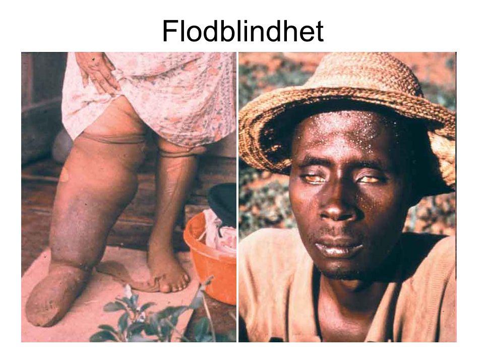 Flodblindhet