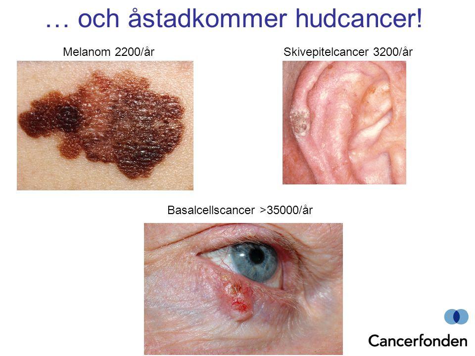 … och åstadkommer hudcancer!