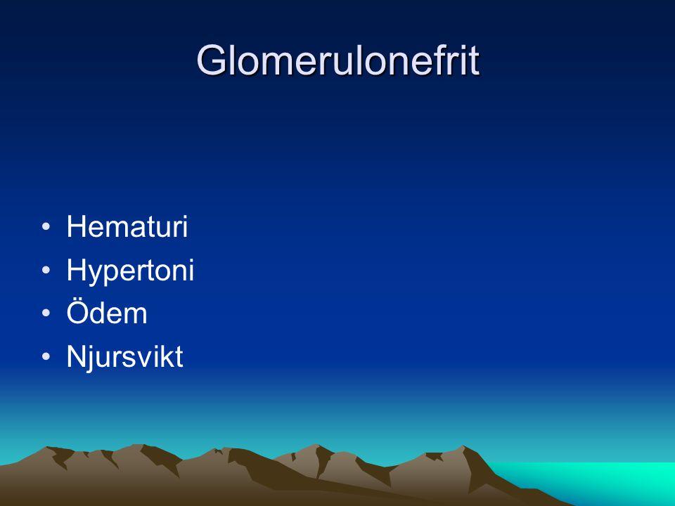 Glomerulonefrit Hematuri Hypertoni Ödem Njursvikt