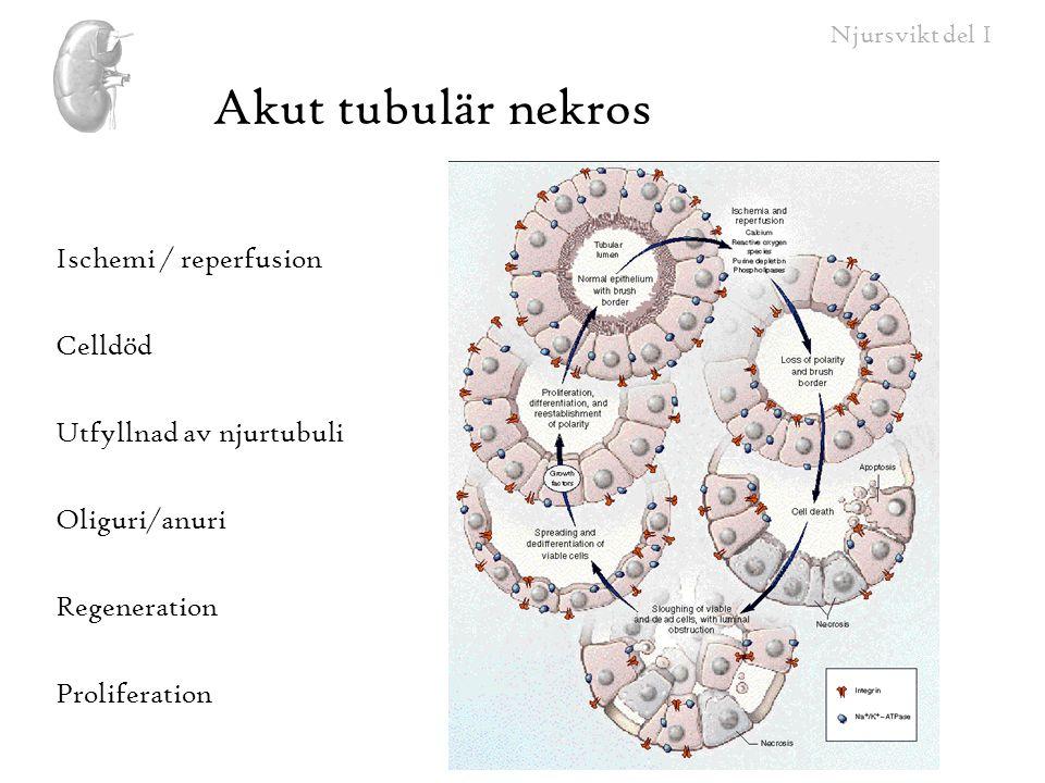 Akut tubulär nekros Ischemi / reperfusion Celldöd
