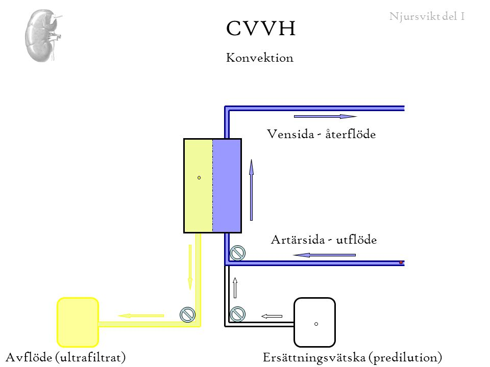 CVVH Konvektion Vensida - återflöde Artärsida - utflöde