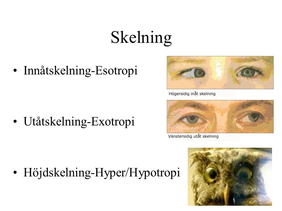 Skelning Innåtskelning-Esotropi Utåtskelning-Exotropi