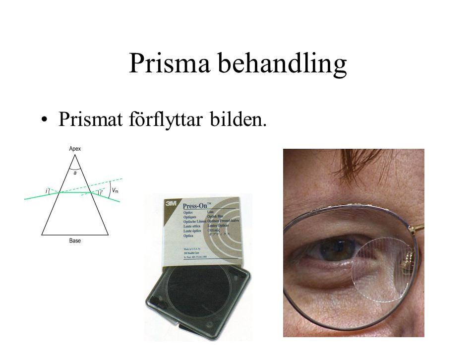 Prisma behandling Prismat förflyttar bilden.