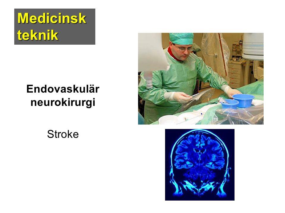 Endovaskulär neurokirurgi