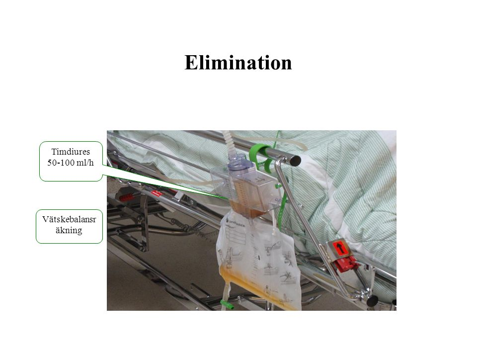 Elimination Timdiures 50-100 ml/h Vätskebalansräkning