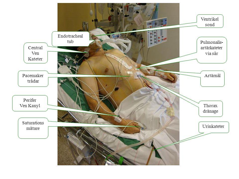 Pulmonalis- artärkateter via sår