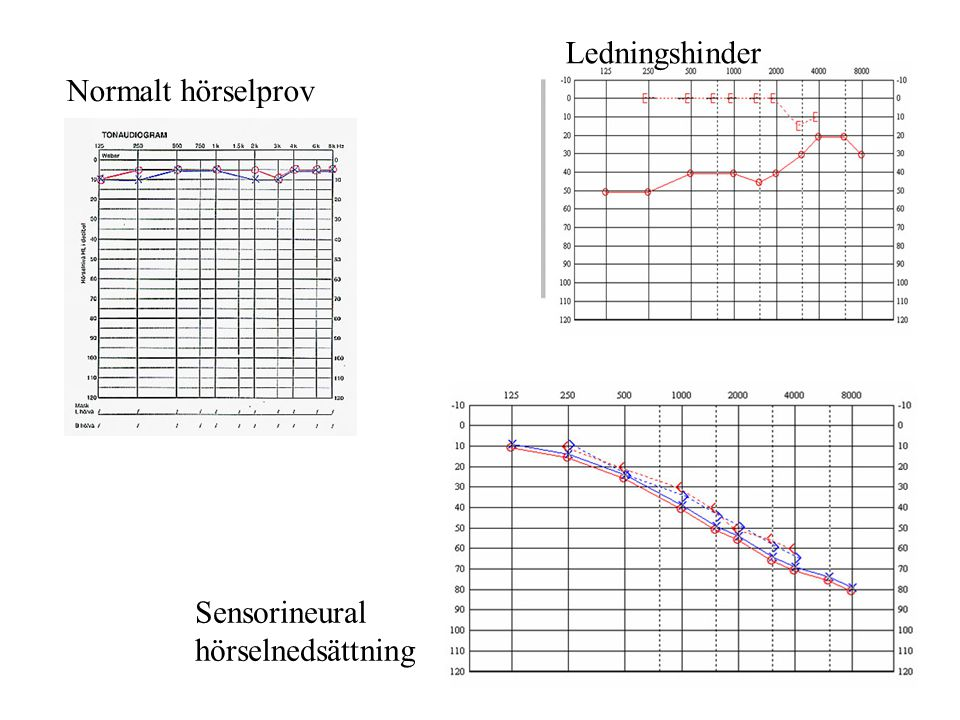 Ledningshinder Normalt hörselprov Sensorineural hörselnedsättning