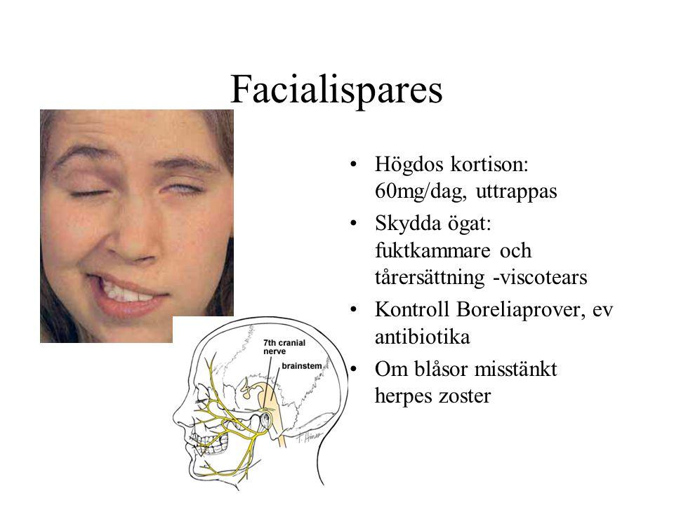 Facialispares Högdos kortison: 60mg/dag, uttrappas