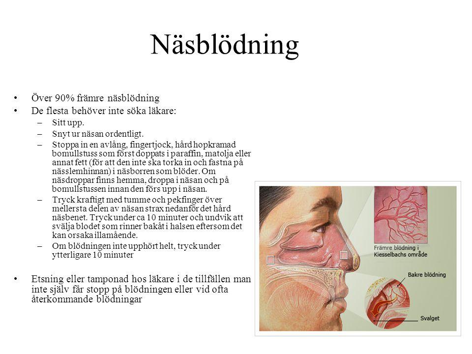 Näsblödning Över 90% främre näsblödning