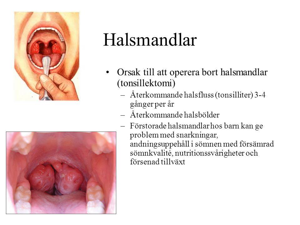 Halsmandlar Orsak till att operera bort halsmandlar (tonsillektomi)
