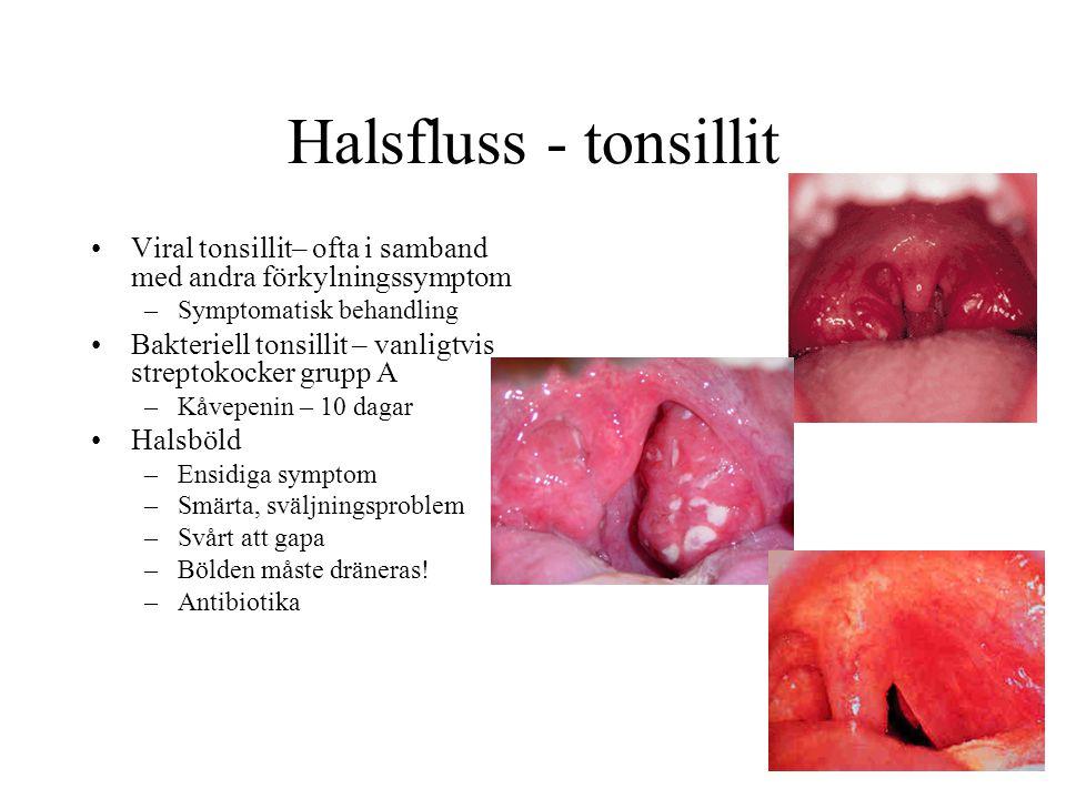 Halsfluss - tonsillit Viral tonsillit– ofta i samband med andra förkylningssymptom. Symptomatisk behandling.