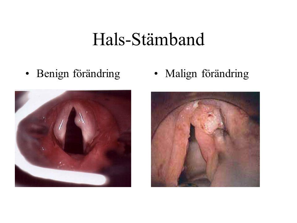Hals-Stämband Benign förändring Malign förändring