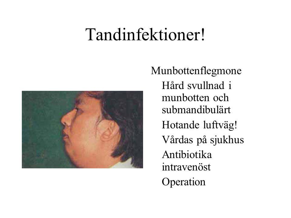 Tandinfektioner! Munbottenflegmone