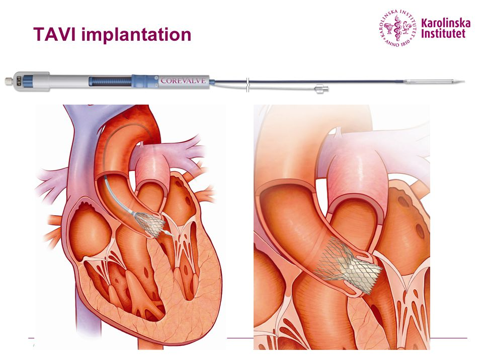 TAVI implantation Andreas Rück
