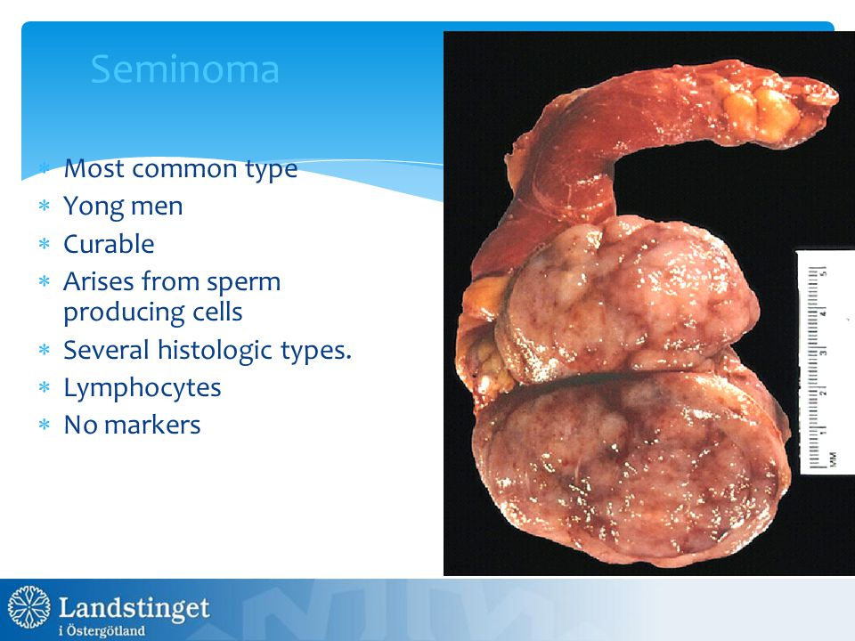 Seminoma Most common type Yong men Curable