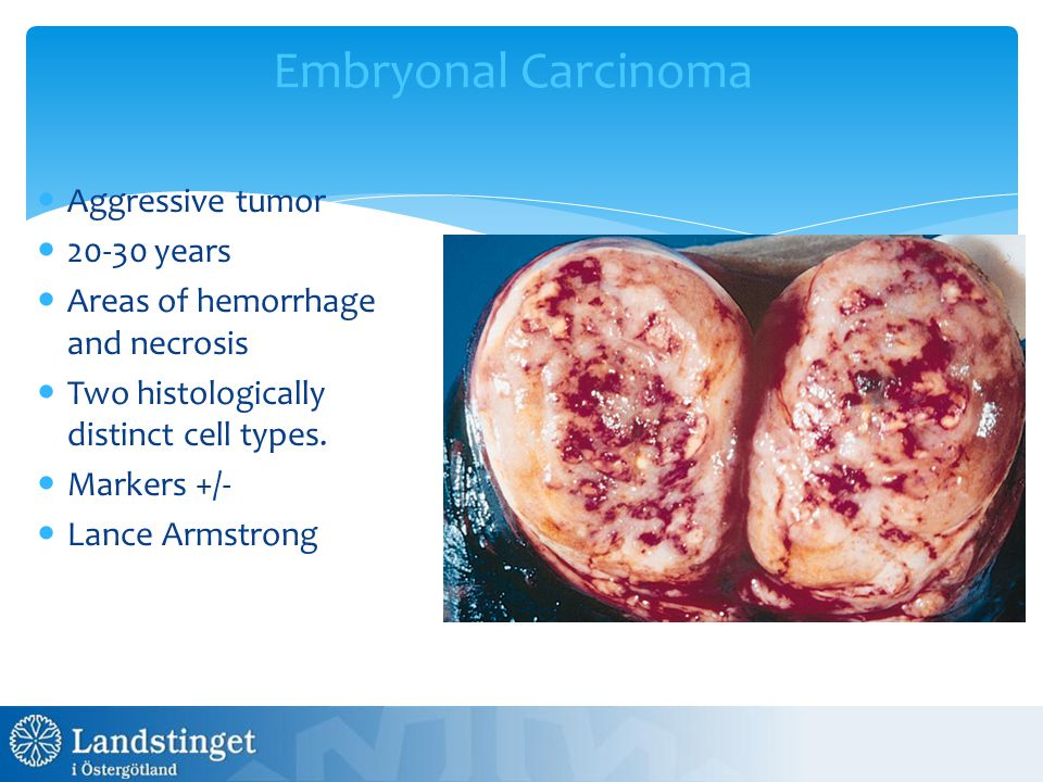 Embryonal Carcinoma Aggressive tumor 20-30 years