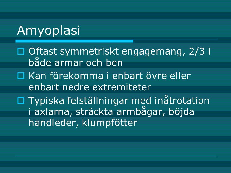 Amyoplasi Oftast symmetriskt engagemang, 2/3 i både armar och ben