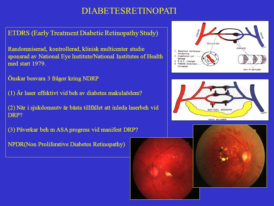 DIABETESRETINOPATI ETDRS (Early Treatment Diabetic Retinopathy Study)
