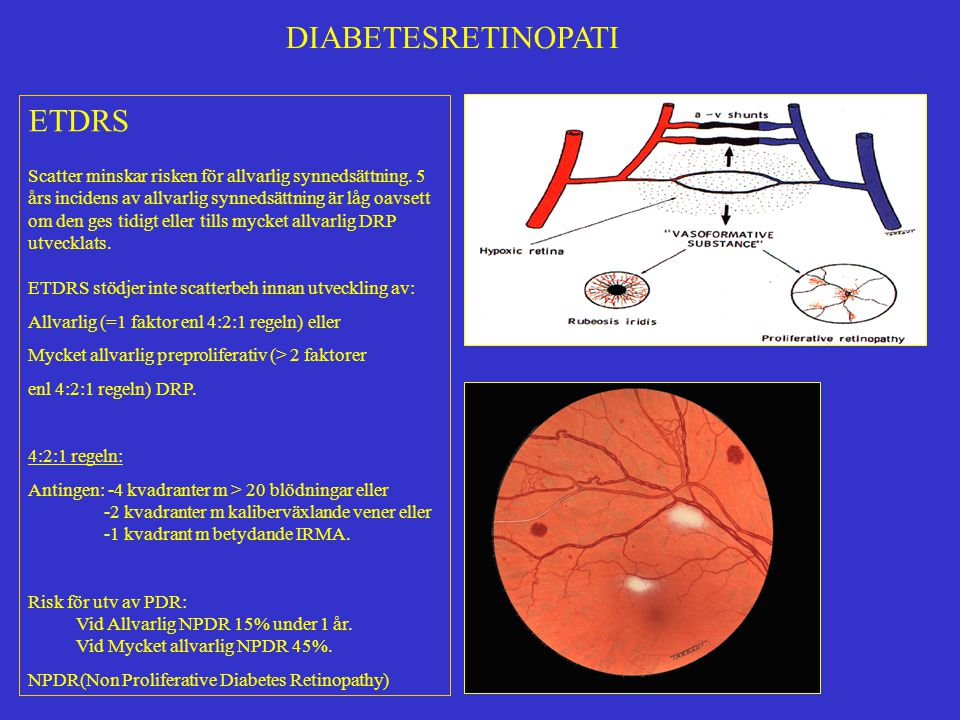 DIABETESRETINOPATI ETDRS