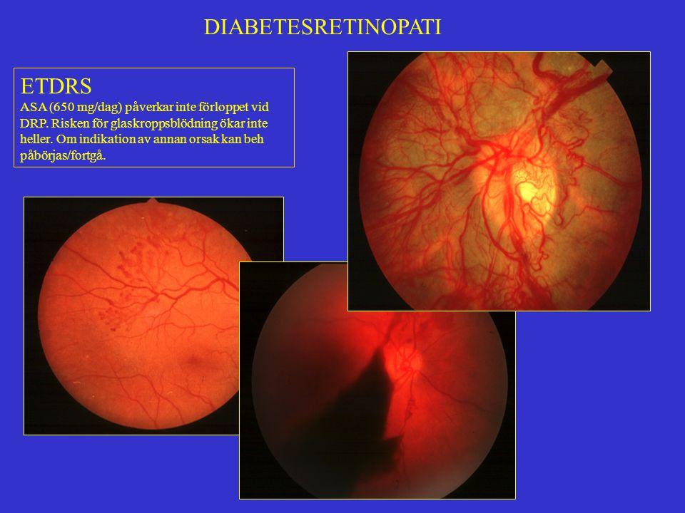 DIABETESRETINOPATI ETDRS ASA (650 mg/dag) påverkar inte förloppet vid