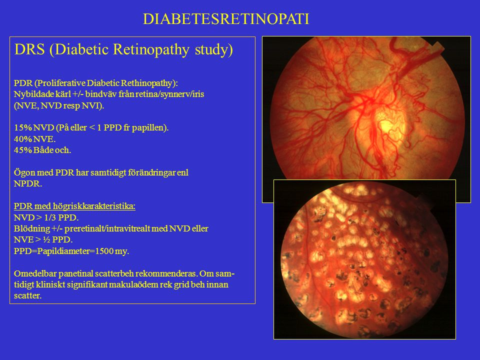 Modified 7-Standard Field Color Fundus Photography Using ...