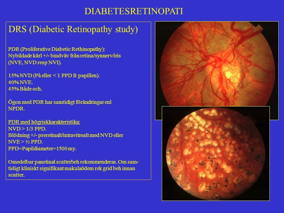 DRS (Diabetic Retinopathy study)
