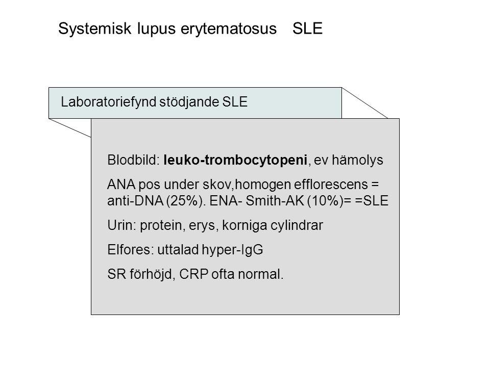 Systemisk lupus erytematosus SLE