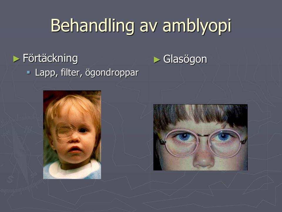 Behandling av amblyopi