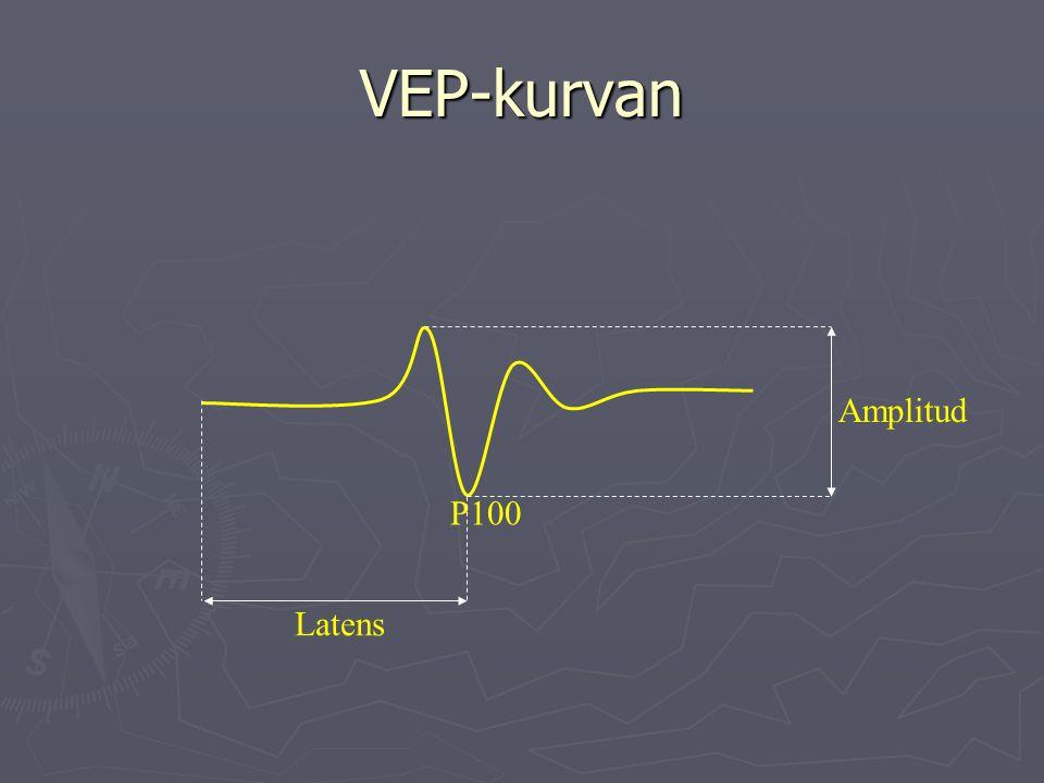 VEP-kurvan Amplitud P100 Latens