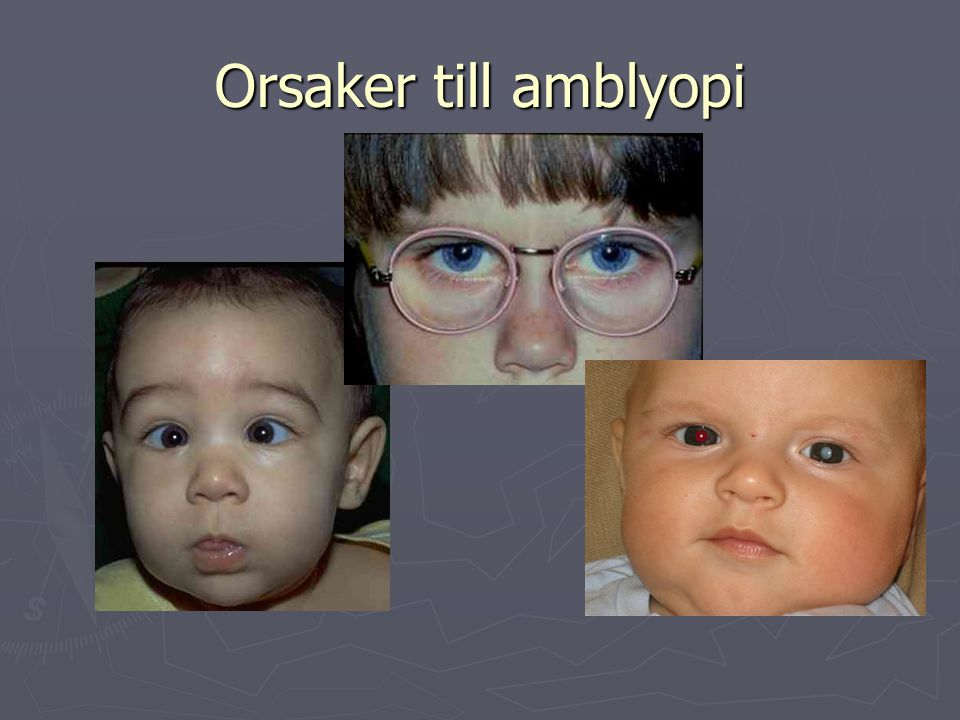Orsaker till amblyopi Inte alltid större skelning ger mer amblyopi.