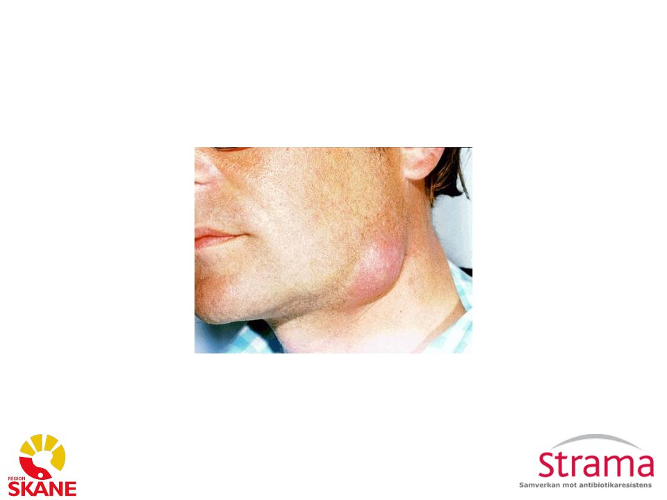 Diffdiagnos körtel på halsen