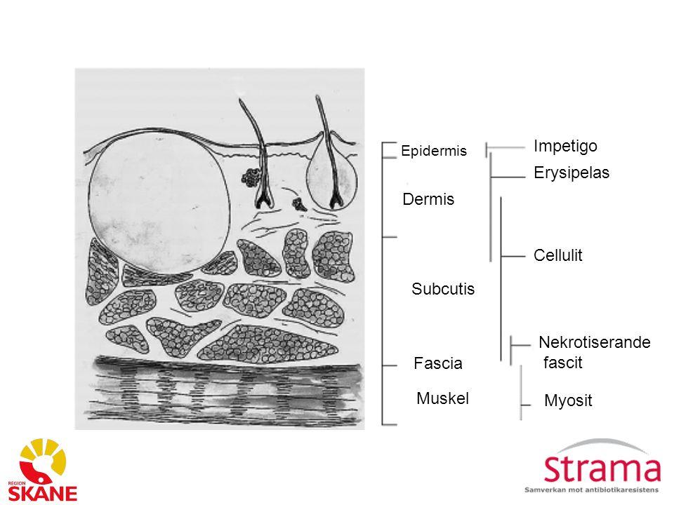 Impetigo Erysipelas Dermis Cellulit Subcutis Nekrotiserande fascit