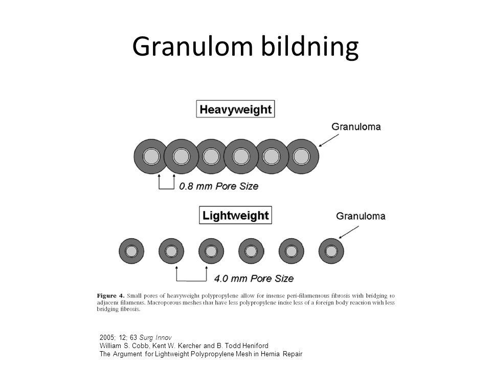Granulom bildning 2005; 12; 63 Surg Innov