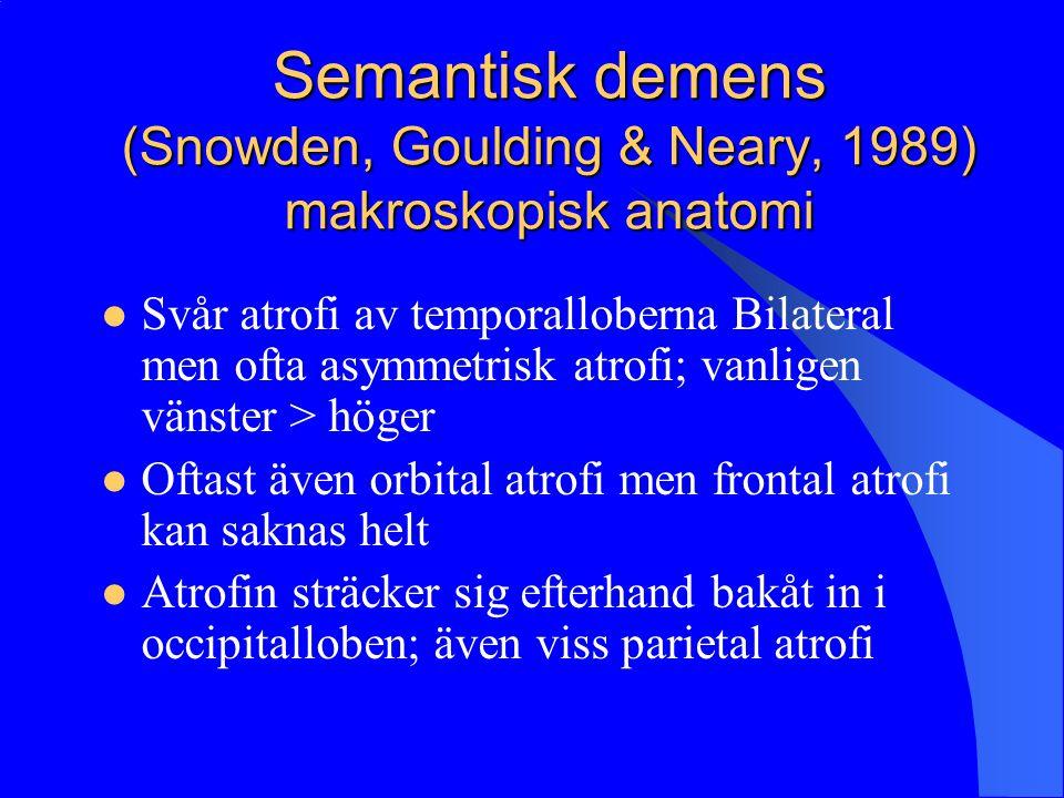 Semantisk demens (Snowden, Goulding & Neary, 1989) makroskopisk anatomi