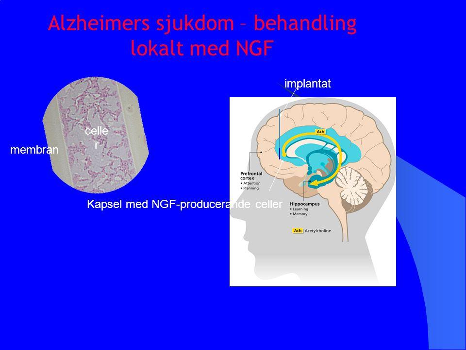 Alzheimers sjukdom – behandling lokalt med NGF