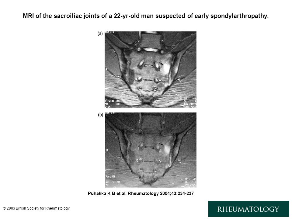 MRI of the sacroiliac joints of a 22-yr-old man suspected of early spondylarthropathy.