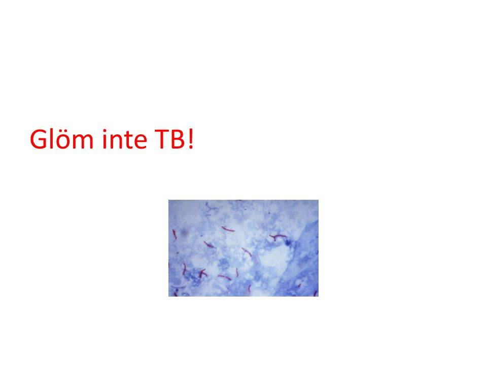 Glöm inte TB!