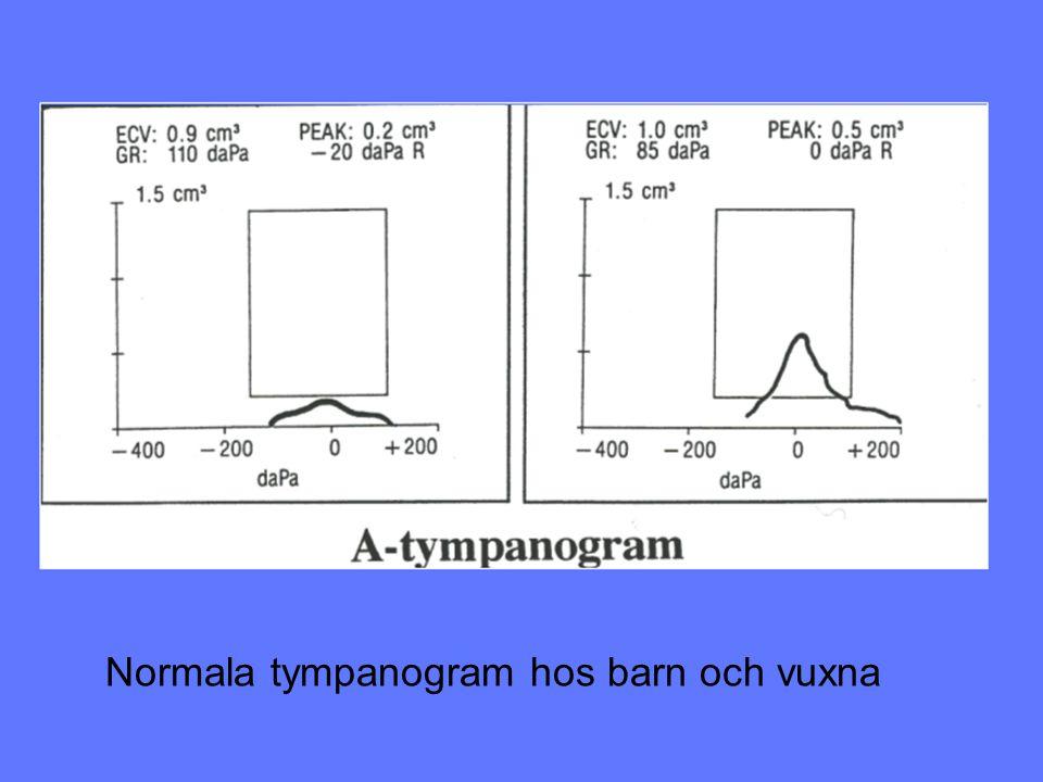 Normala tympanogram hos barn och vuxna