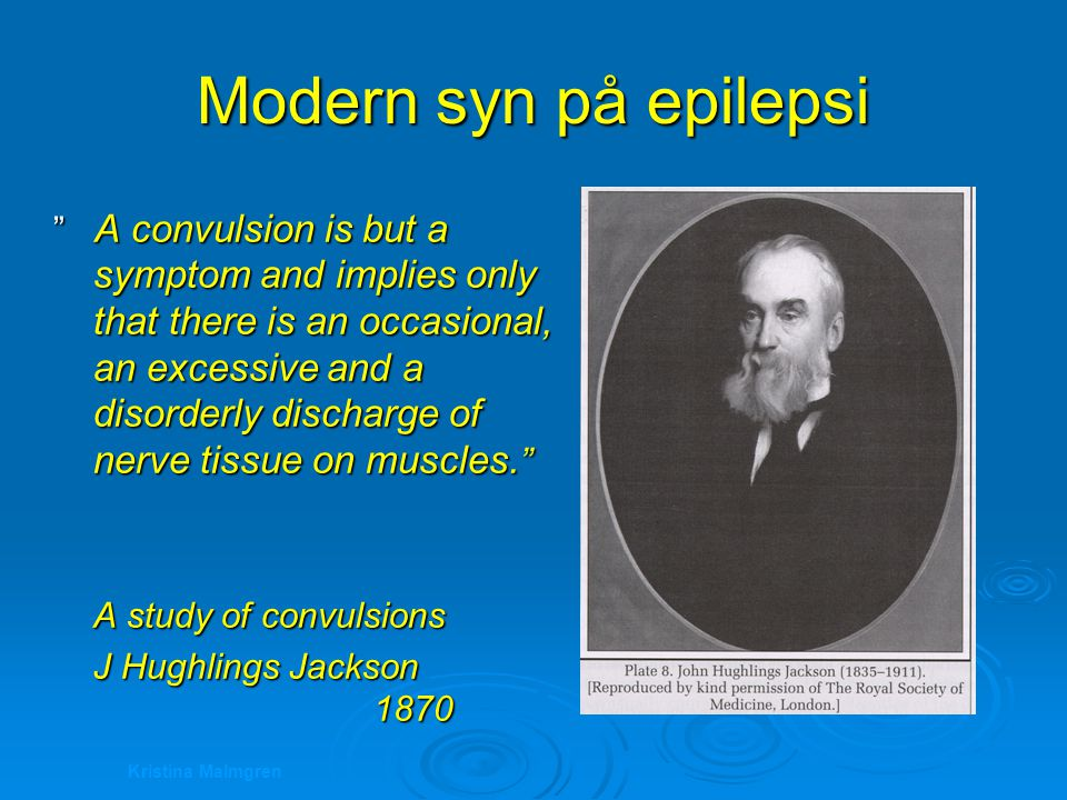 Modern syn på epilepsi