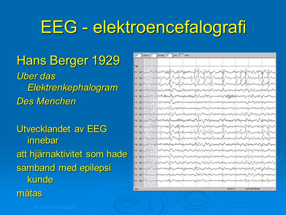 EEG - elektroencefalografi
