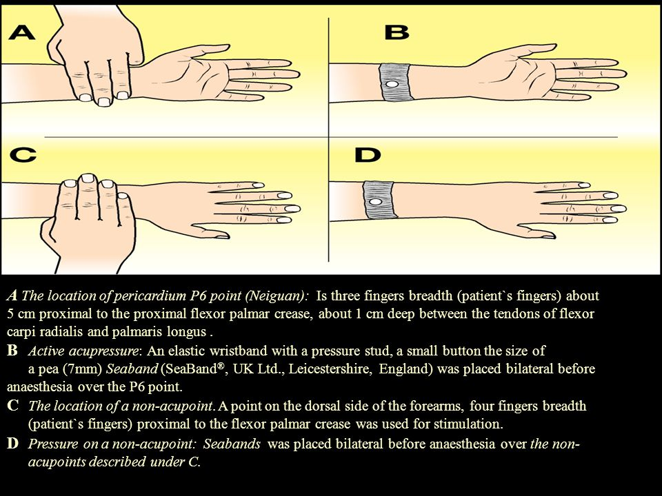 A The location of pericardium P6 point (Neiguan): Is three fingers breadth (patient`s fingers) about 5 cm proximal to the proximal flexor palmar crease, about 1 cm deep between the tendons of flexor carpi radialis and palmaris longus .