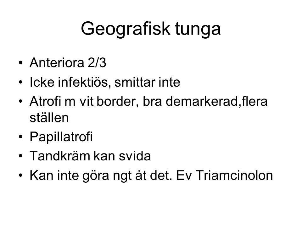 Geografisk tunga Anteriora 2/3 Icke infektiös, smittar inte