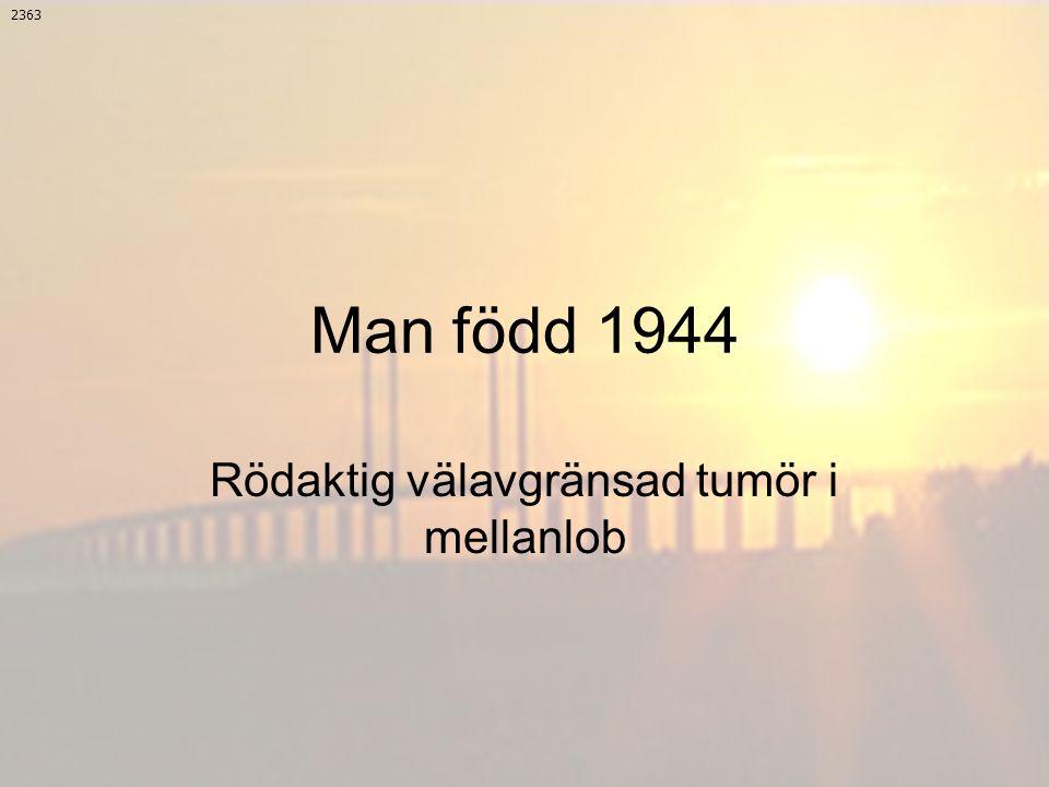 Rödaktig välavgränsad tumör i mellanlob